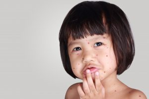 image of a child with chickenpox