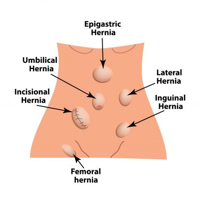 an illustration image of different types of hernia on the body for what happens when you have hernia page